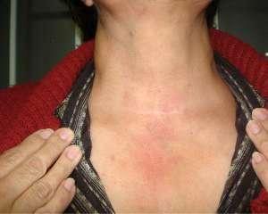 tiroidectomía